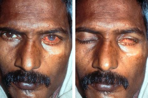 What causes someone to sleep with their eyes open? - Sleep