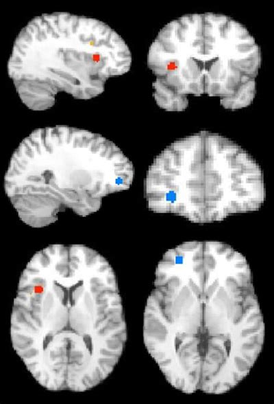 Cognition and behavior: Autism brains normalize over time
